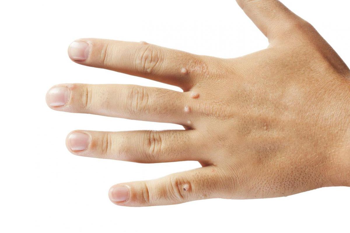 Значение родинки на пальце ног у мужчин