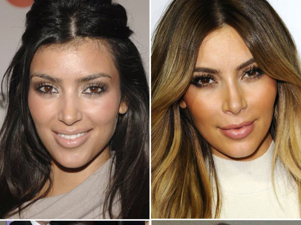 http://www.envyclinic.sk/uploads/files/kim-kardashian-enhancement-surgery-ftr-1283.jpg